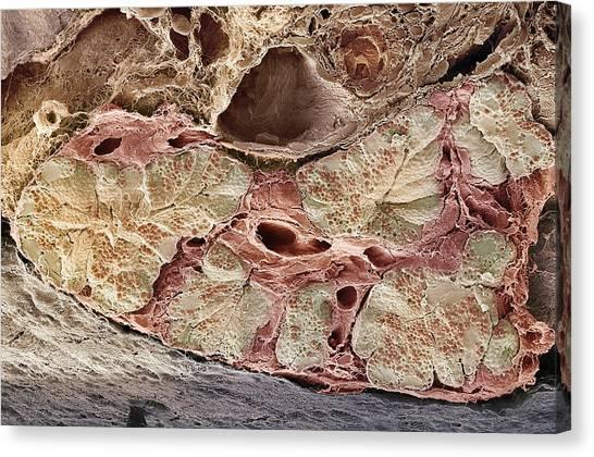Pancreas Tissue, Sem Canvas Print by Steve Gschmeissner