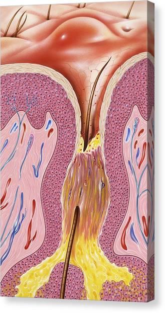 Acne, Artwork Canvas Print by John Bavosi