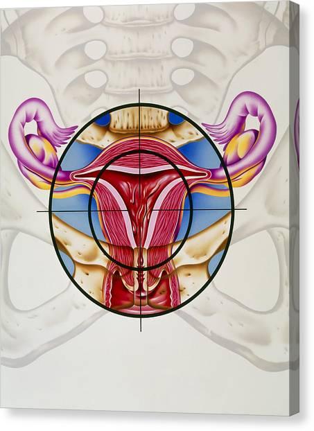 Artwork Of The Uterus During Menstruation Canvas Print by John Bavosi