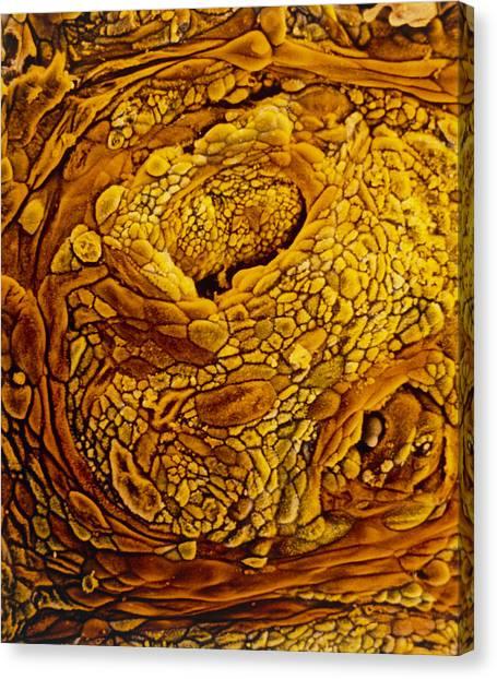 Coloured Sem Of Adenocarcinoma Of The Human Uterus Canvas Print by Professors P.m. Motta & S. Makabe