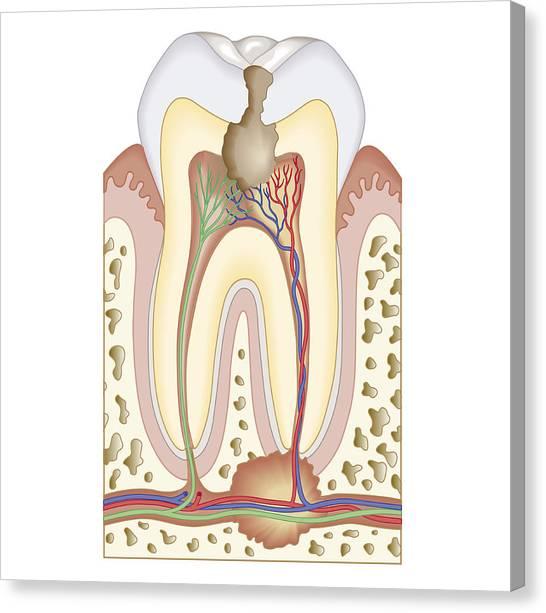 molar tooth abscess - 546×613
