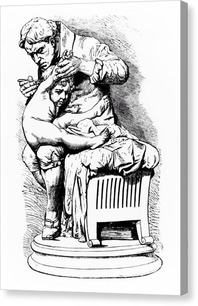 Monteverde Canvas Print - Drawing Of Jenner Vaccinating His Son Of Smallpox by