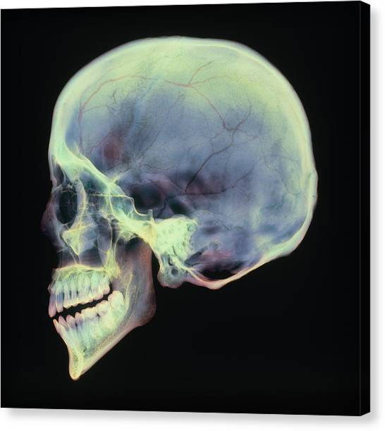 Human Skull, X-ray Canvas Print by D. Roberts