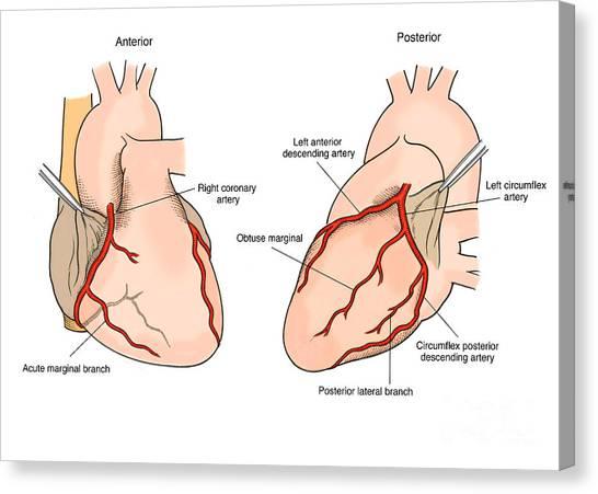 Left Coronary Artery Canvas Prints Fine Art America