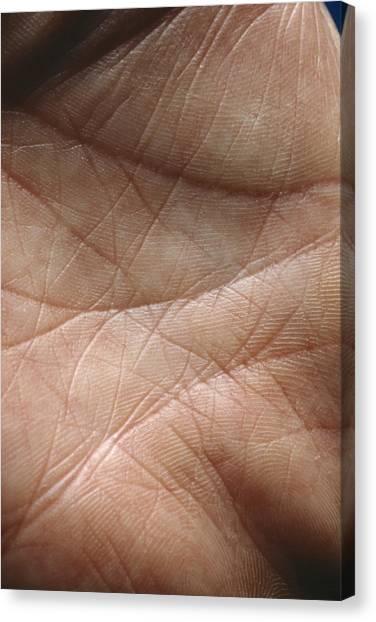 Skin Canvas Print by Mike Devlin