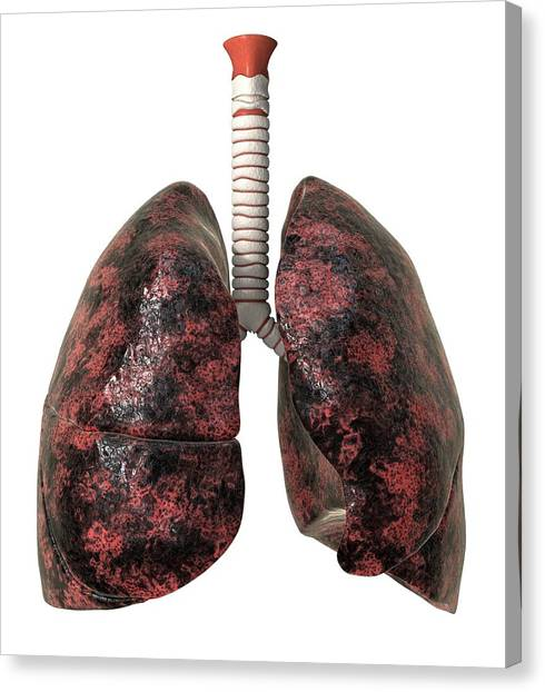Smoker's Lungs, Artwork Canvas Print by David Mack