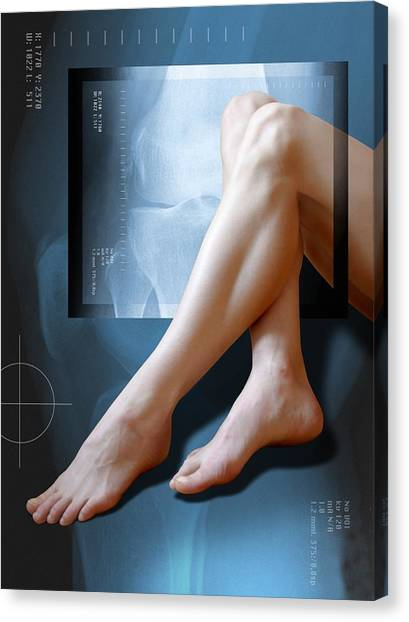Woman's Legs, With Knee X-ray Canvas Print by Miriam Maslo