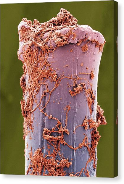Toothbrush Canvas Print - Used Toothbrush Bristle, Sem by Steve Gschmeissner