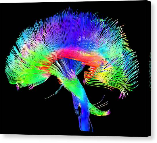 Brain Canvas Print - Brain Pathways by Tom Barrick, Chris Clark, Sghms
