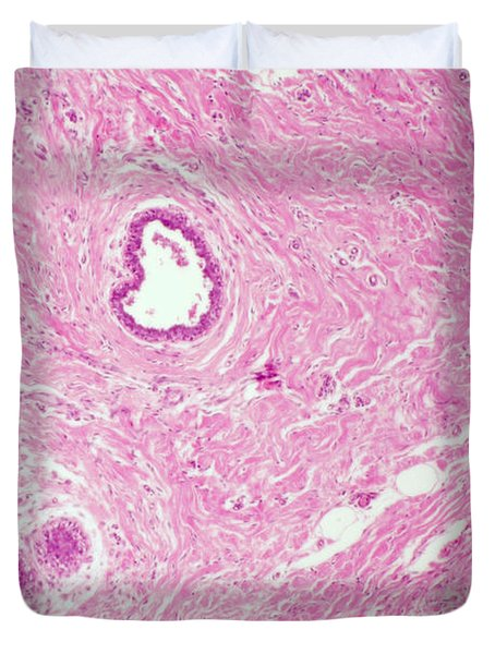 Inactive Mammary Gland, Lm Duvet Cover