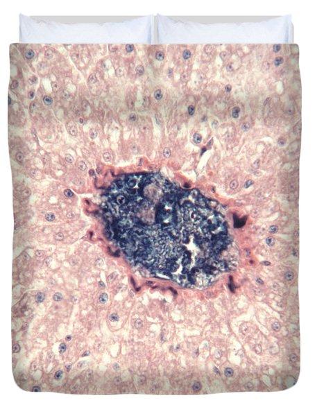 Liver Tissue Of A Cat Lm Duvet Cover