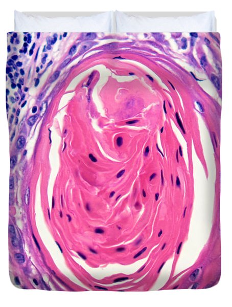 Squamous Cell Carcinoma, Keratin Pearl Duvet Cover