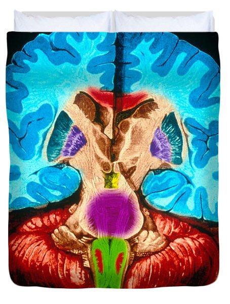 Brain, Coronal Section Duvet Cover