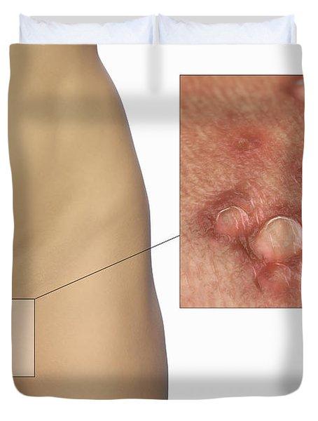 Genital Warts Duvet Cover