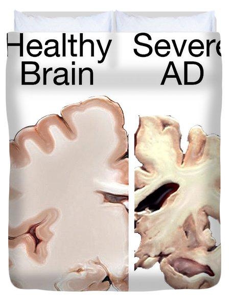 Alzheimers Disease, Healthy Vs. Severe Duvet Cover