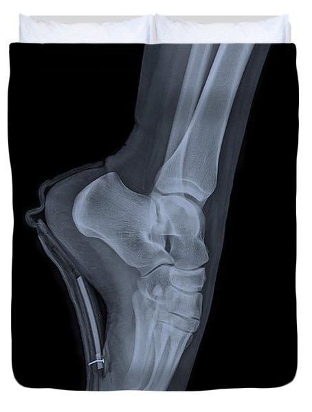 Ballet Dancer X-ray 2 Duvet Cover