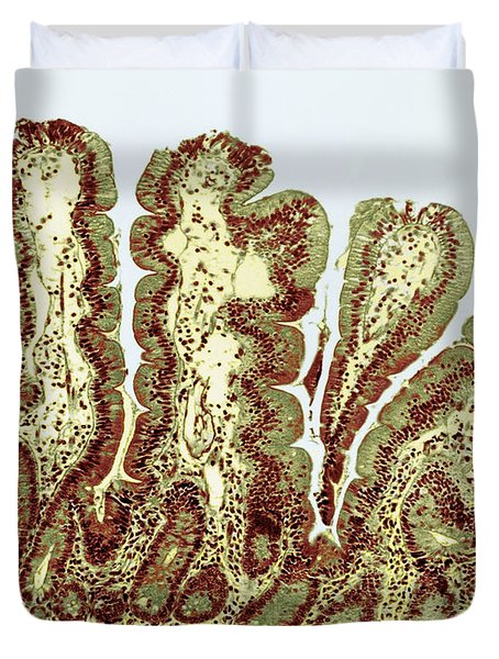 Giardiasis Light Micrograph Duvet Cover by Science Source