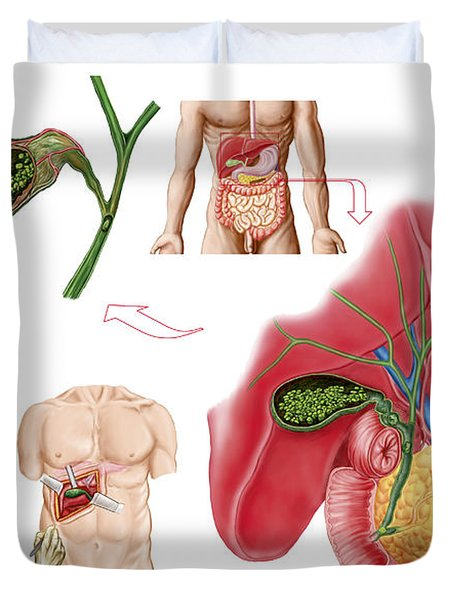 Illustration Depicting Cholecystectomy Duvet Cover