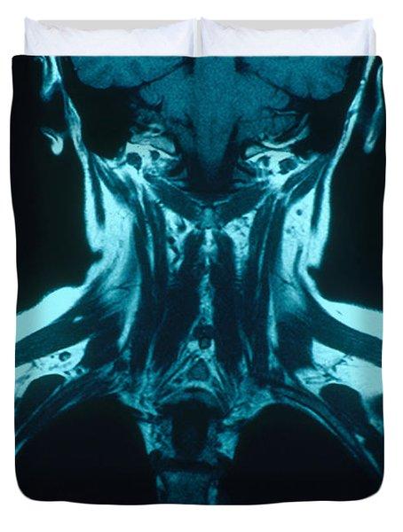 Mri Of The Brachial Plexus Duvet Cover