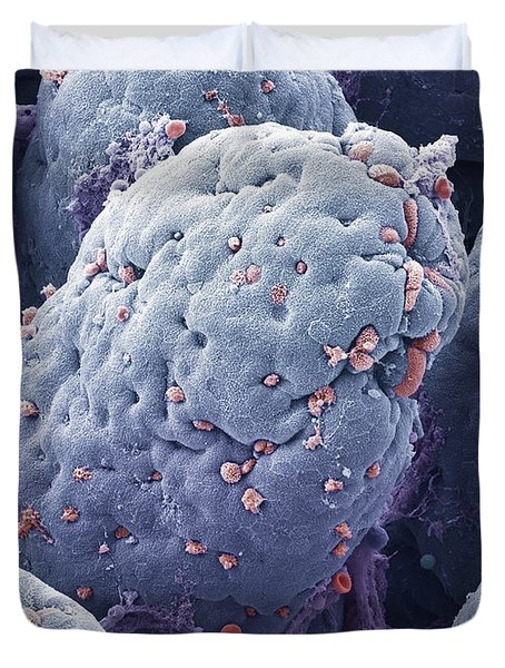 P5200228 - Intestinal Lining Sem Duvet Cover by Spl