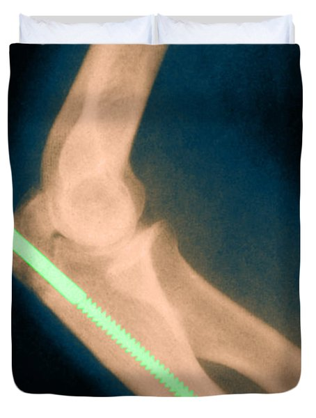 Broken Arm With Metal Pin, X-ray Duvet Cover by Science Source