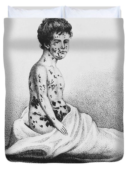 Development Of Smallpox Duvet Cover by Science Source