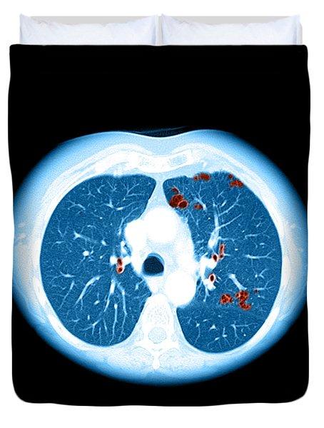 Emphysema On Ct Chest Duvet Cover