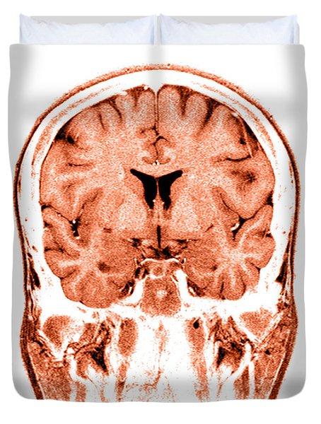 Normal Coronal Mri Of The Brain Duvet Cover