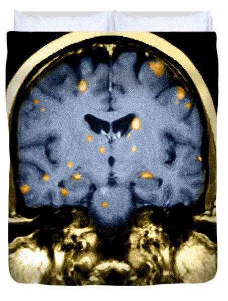 Brain Metastasis From Breast Cancer Duvet Cover