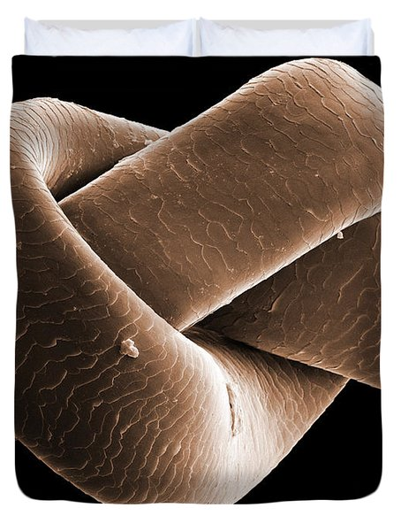 Knot In Human Hair, Sem Duvet Cover by Ted Kinsman