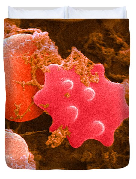 Red Blood Cells And Acanthocyte, Sem Duvet Cover by Science Source