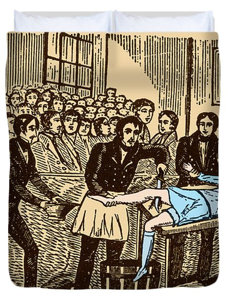 Surgery Without Anesthesia, Pre-1840s Duvet Cover by Science Source