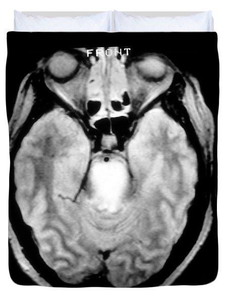 Mri Of Brainstem Glioma Duvet Cover