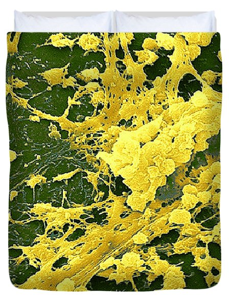 Staphylococcus Biofilm Duvet Cover by Science Source