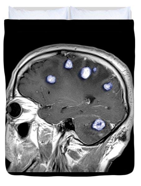 Brain Tumors Duvet Cover