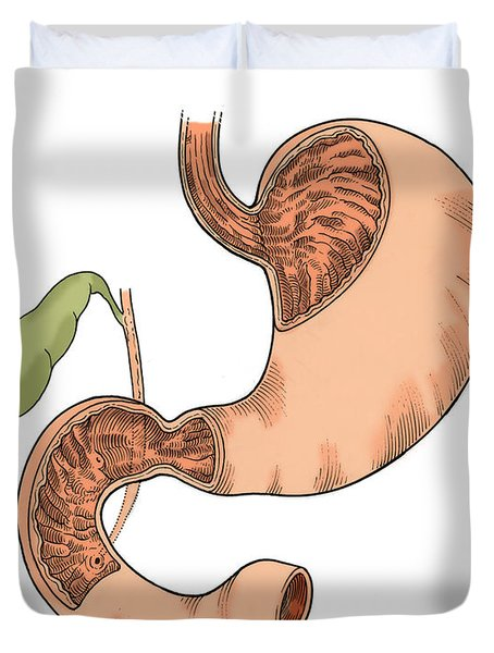 Illustration Of Stomach And Duodenum Duvet Cover