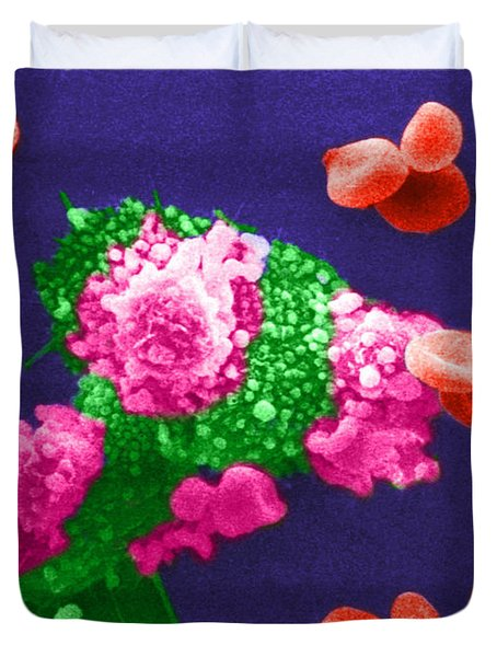 Cancer Cell Death, Sem 3 Of 6 Duvet Cover by Science Source