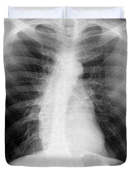 Chest X-ray - Copd And Scoliosis Photograph by Medical ...  Chest X-ray - C...