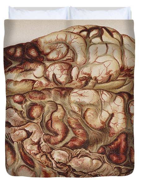 Encircling Gunshot-wound In Brain, 1898 Duvet Cover by Science Source