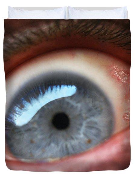 Eyesore Duvet Cover by Baron Dixon