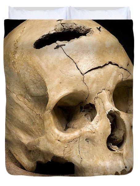 Keyhole Gunshot Trauma, 1860s Duvet Cover by Science Source