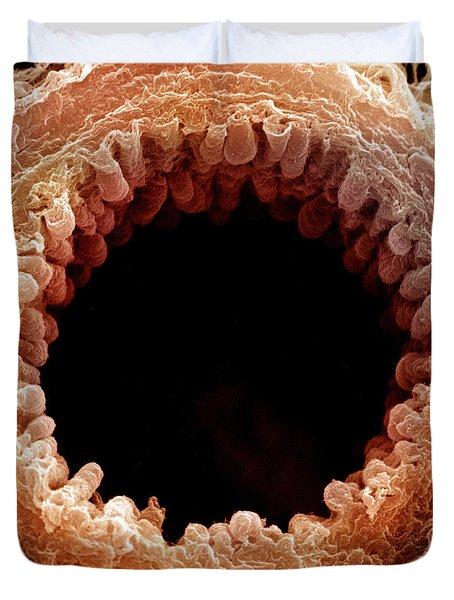 Mouse Bronchiole, Sem Duvet Cover by Science Source