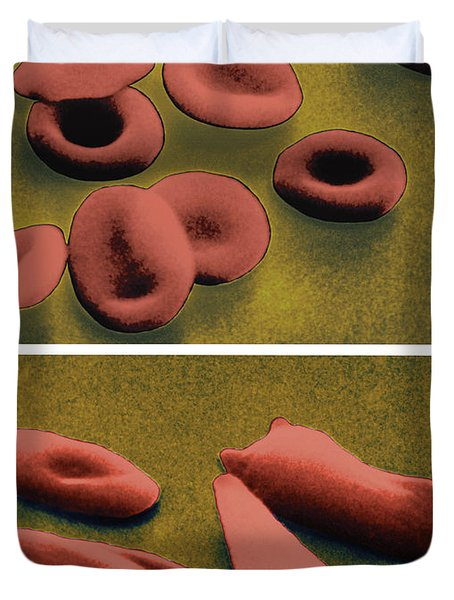 Normal And Sickle Red Blood Cells Duvet Cover by Omikron