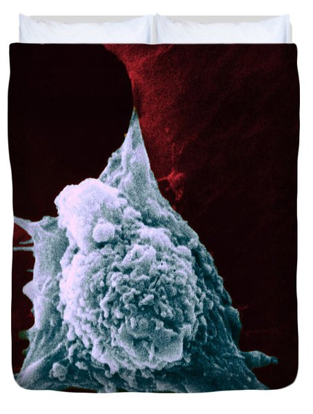Sem Of Metastasis Duvet Cover by Science Source
