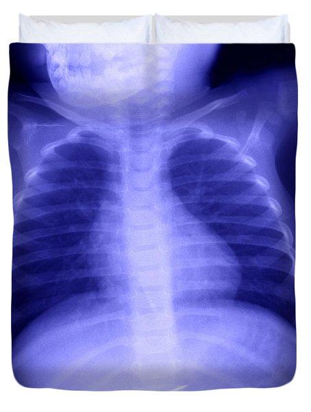 Swallowed Nail Duvet Cover