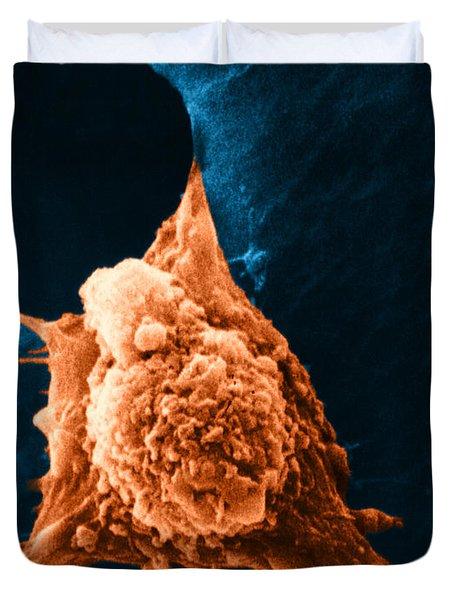 Metastasis Duvet Cover by Science Source