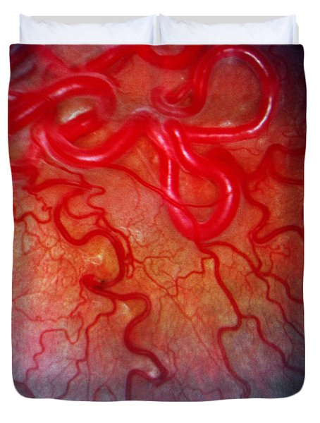Wyburn-mason Syndrome Duvet Cover by Science Source