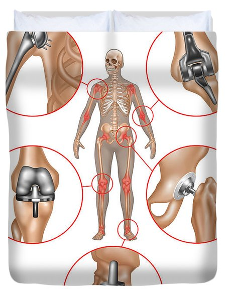 Joint Replacements, Illustration Duvet Cover