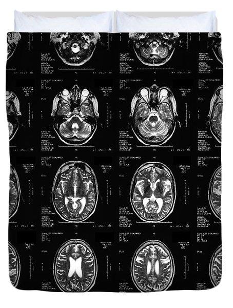 Normal Brain, 62-year-old Woman, Mri Duvet Cover