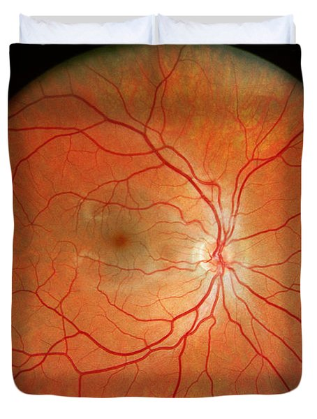 Normal Retina Duvet Cover by Science Source